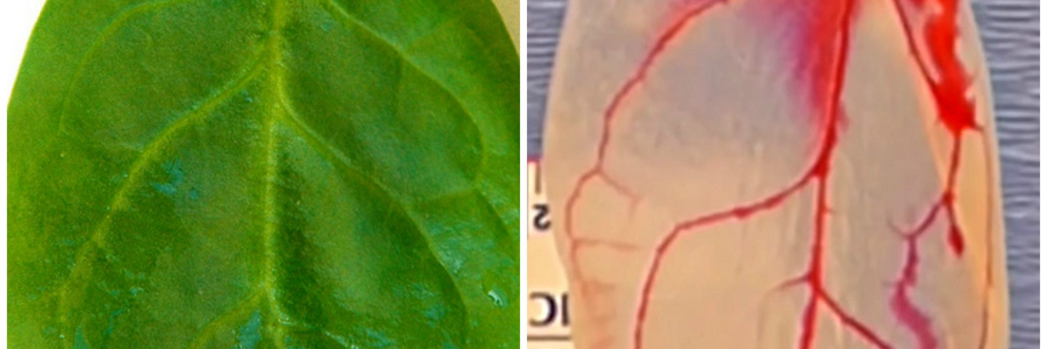 Scientists Figured Out That Spinach Can Be Turned Into Tissue For The Human Heart